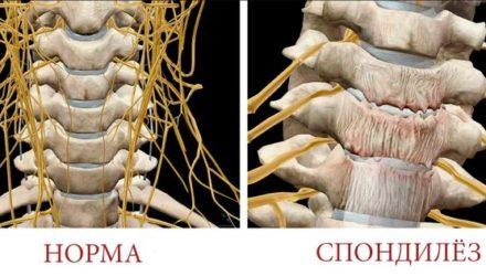 Спондилез пояснично-крестцового отдела позвоночника- причины, симптомы и лечение
