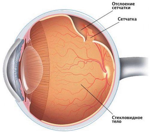что такое отслоение сетчатки глаза