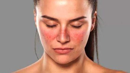 Системная красная волчанка — что это за болезнь, причины, симптомы, диагностика, лечение