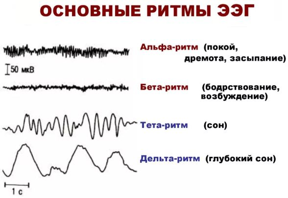 основные ритмы ЭЭГ