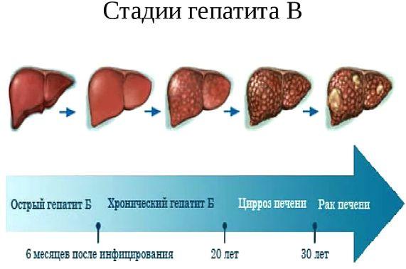 стадии гепатита В по поражению печени