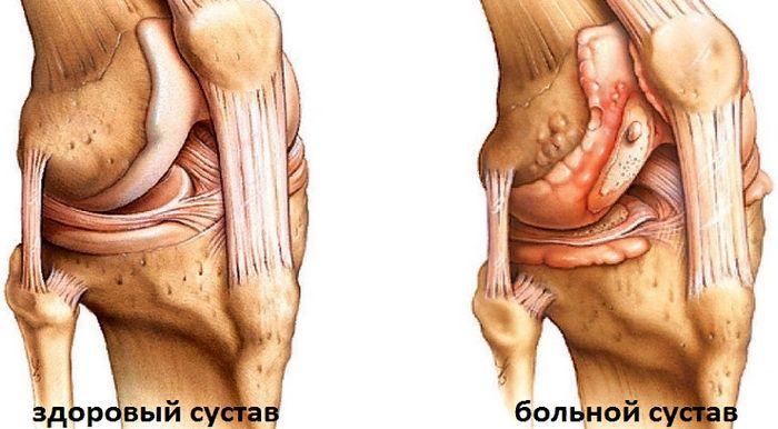 болит колено - что делать