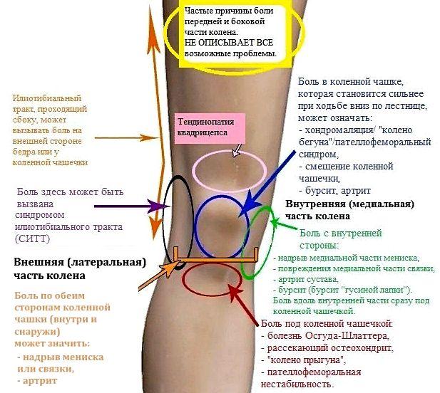 частые причины болей в колениях