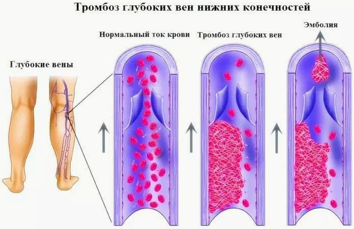 Тромбоз глубоких вен нижних конечностей - причины, симптомы, лечение, диета, профилактика, осложнения