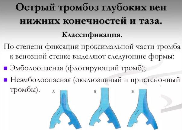 классификация тромбозов вен нижних конечностей