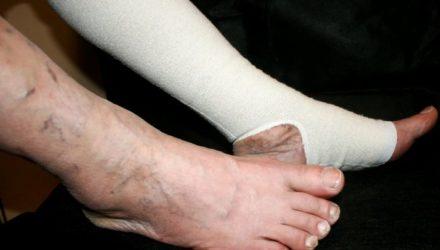 Тромбоз глубоких вен нижних конечностей — причины, симптомы, лечение, диета, профилактика, осложнения