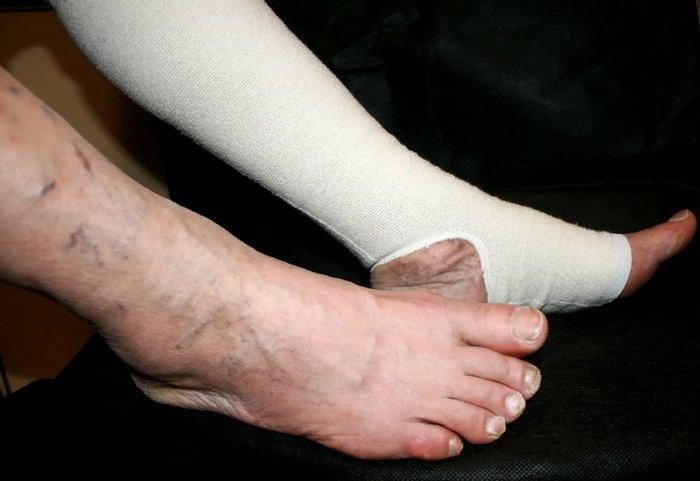 лечение тромбоза вен на ногах
