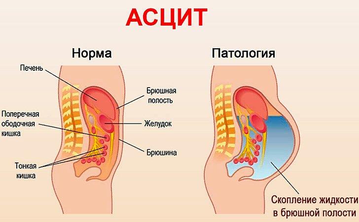 норма и патология при асците