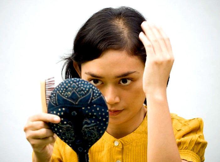 причины алопеции у мужчин и женщин