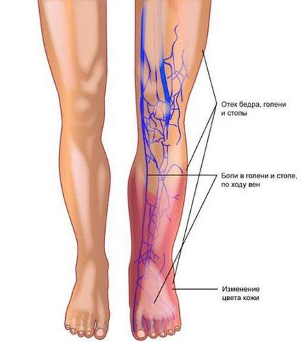 симптомы, признаки тромбоза глубоких вен ноги