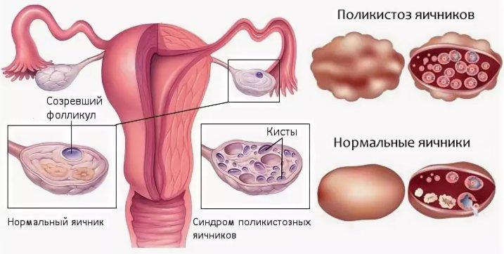 что такое поликистоз яичников
