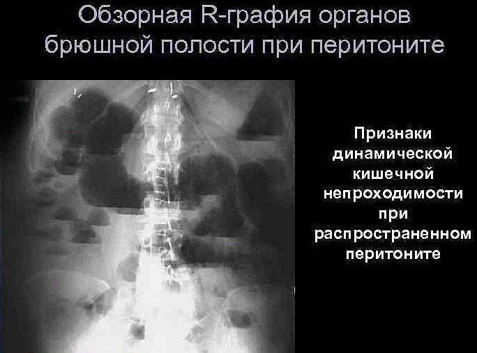 диагностика перитонита
