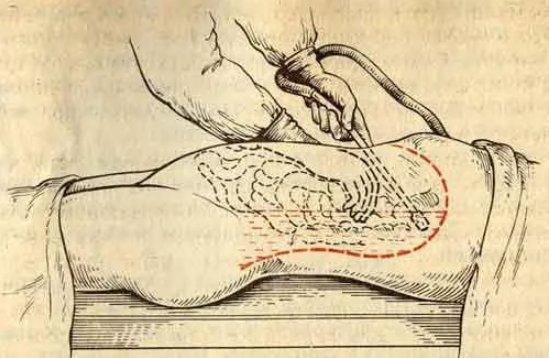лечение хирургическое перитонита