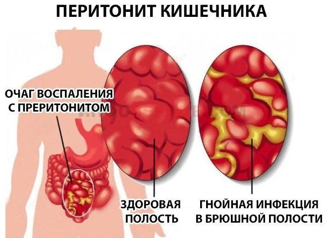 перитонит - симптомы и лечение