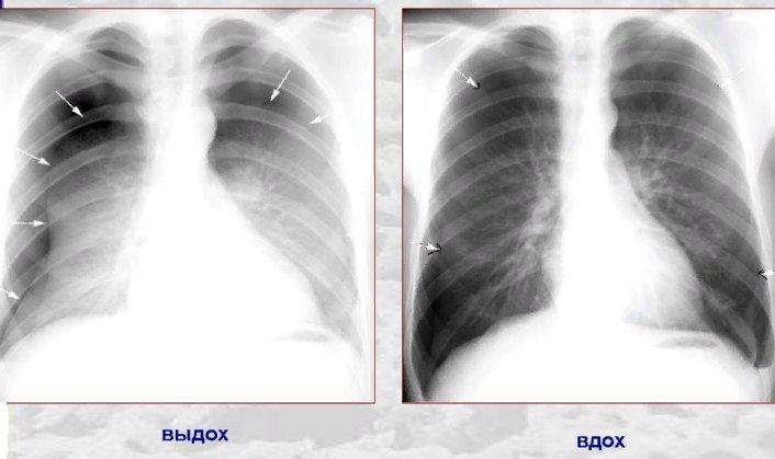 диагностика пневмоторакса