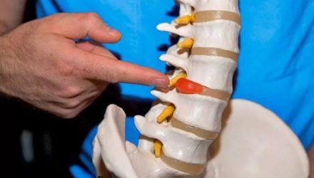 Лечение межпозвоночной грыжи: описание наиболее эффективных методик