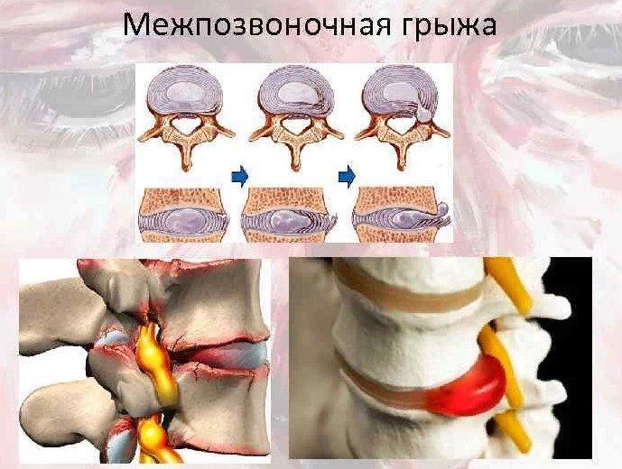 симптомы грыжи в позвоночнике