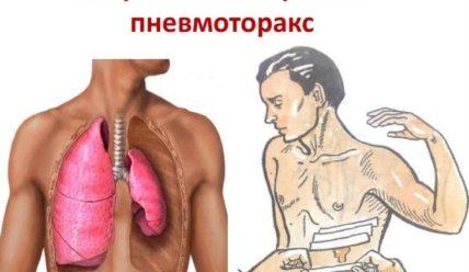 Пневмоторакс — что это, причины, симптомы, первая помощь, дренаж, лечение