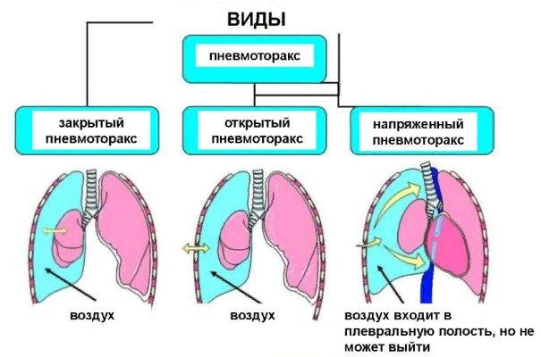 виды пневматоракса в медицине