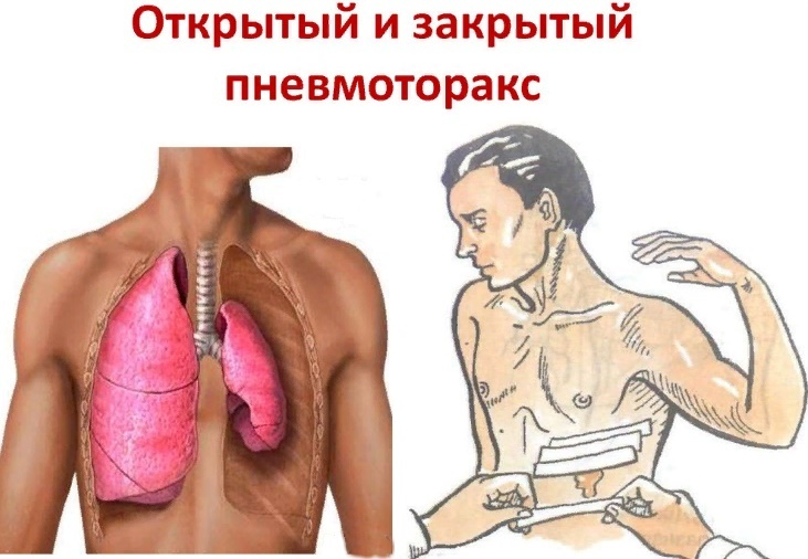 виды пневматоракса