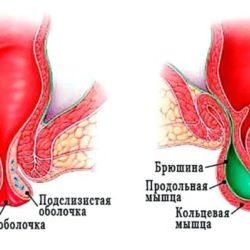Выпадение прямой кишки — причины, формы, симптомы, лечение