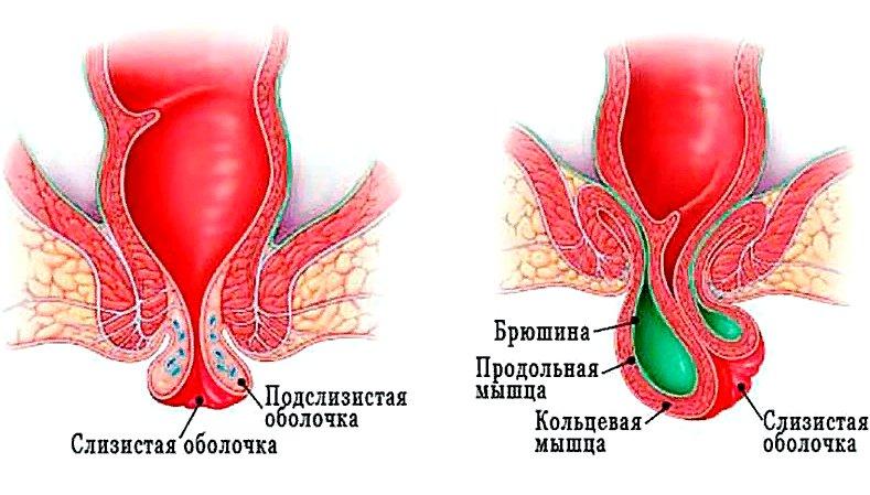 формы выпадения прямой кишки
