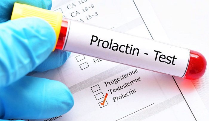 как подготовиться к анализу крови на пролактин