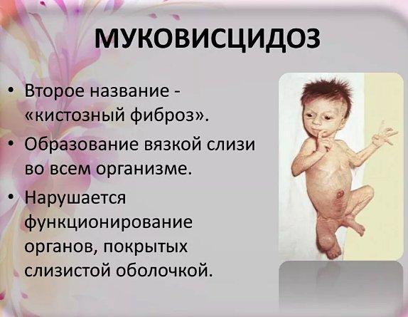 муковисцидоз у ребенка