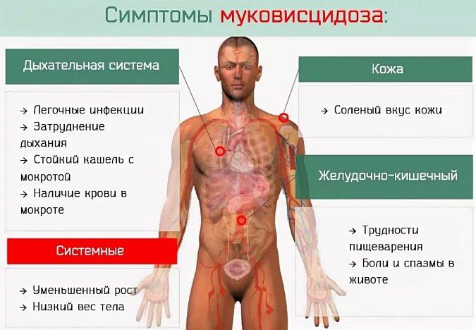 симптомы муковисцидоза, признаки