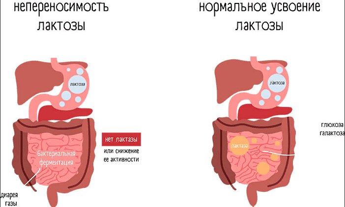 что такое недостаточность лактозы