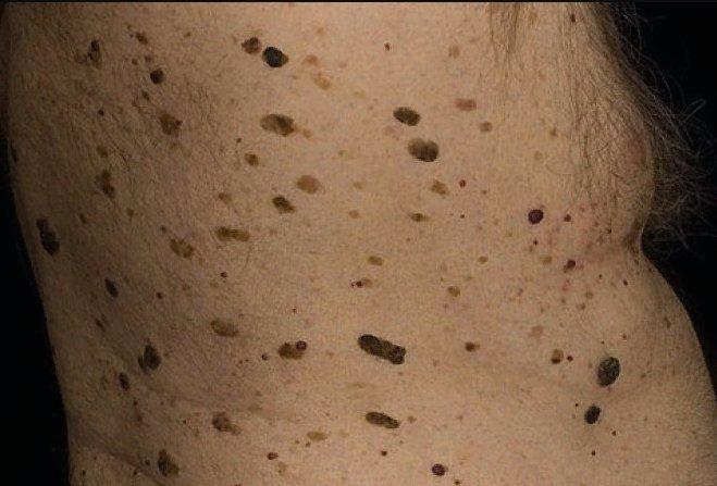 кератомы множественные на коже тела