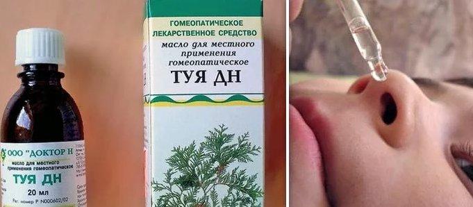 лечение аденоидов у детей маслом туи