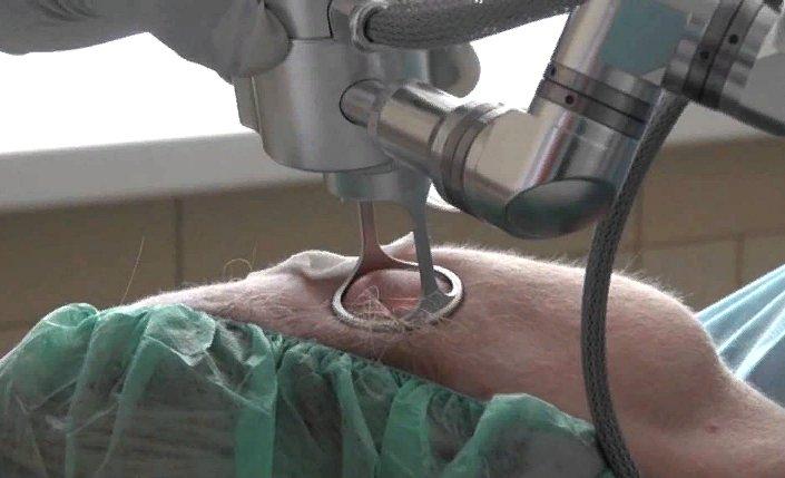лечение кератомы