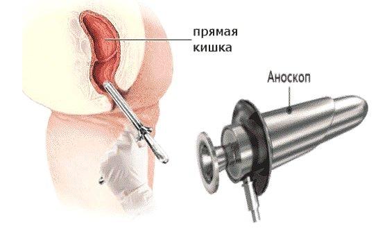 аноскопия - что это такое