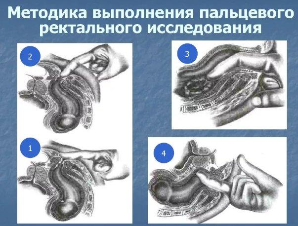 методика выполнения пальцевого исследования прямой кишки