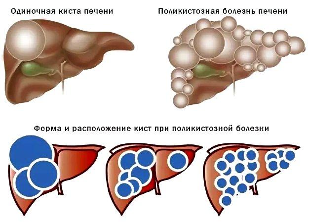 классификация кист печени