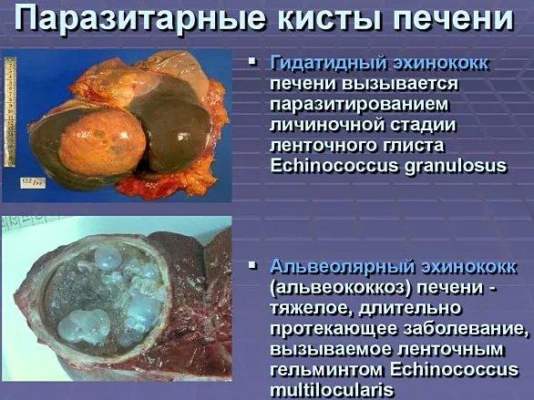 паразитарные кисты печени