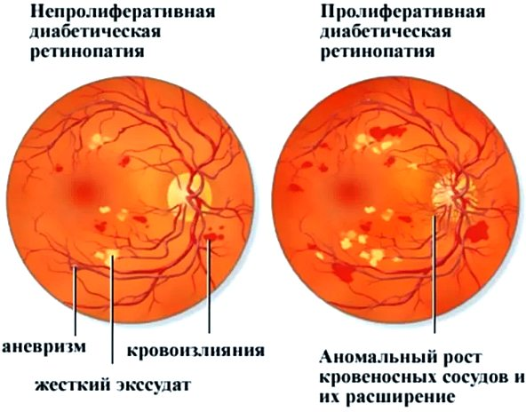 ретинопатия диабетическая виды