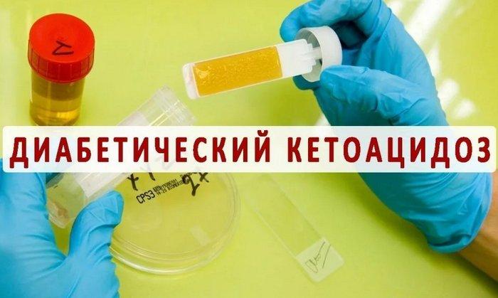 диагностика и лечение кетоацидоза