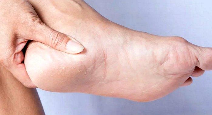 грубая кожа на пятках - как избавиться в домашних условиях
