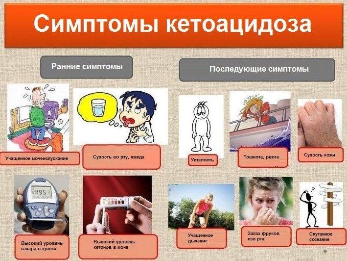 симптомы кетоацидоза, признаки