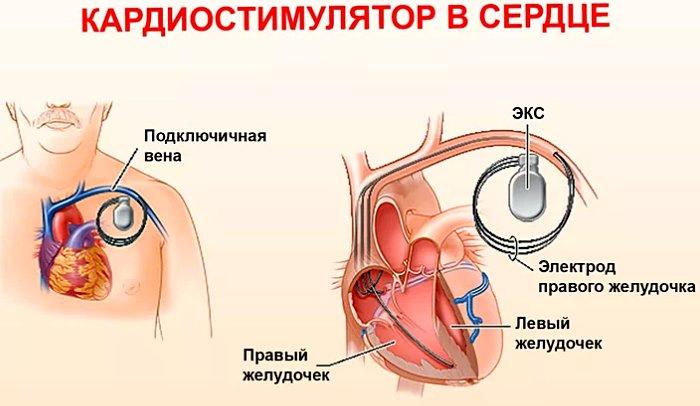 как устанавливают кардиостимулятор