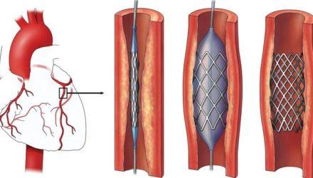 Кардиостимулятор, операции по стентированию и шунтированию сосудов сердца