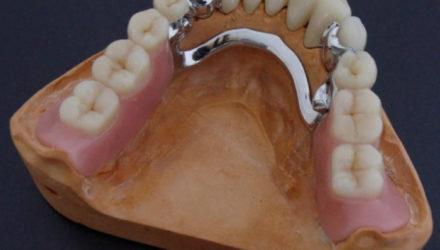 Бюгельный съемный зубной протез — что это такое, преимущества и недостатки