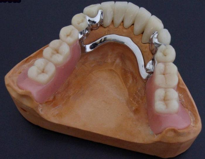 бюгерный зубной протез - что это, как держится во рту