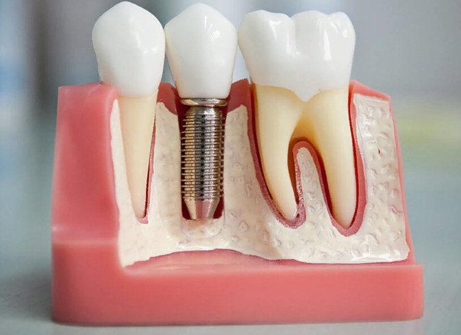 преимущества несъемных протезов зубов