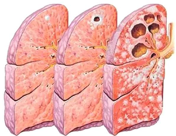 причины фиброза легких