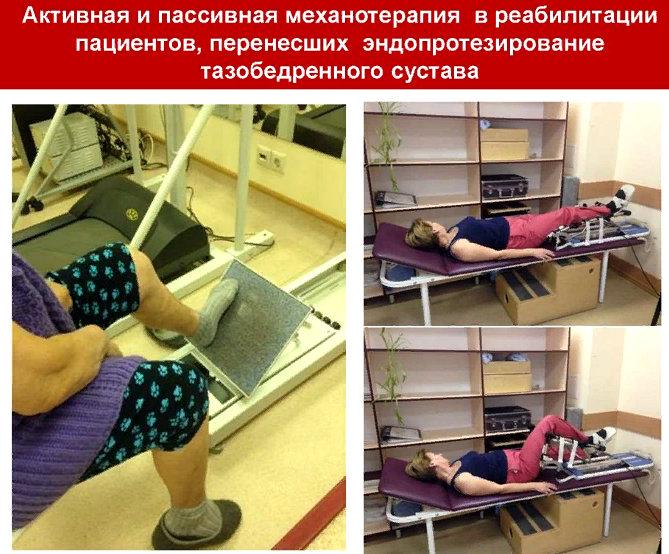 реабилитация после операции эндопротезирования суставов