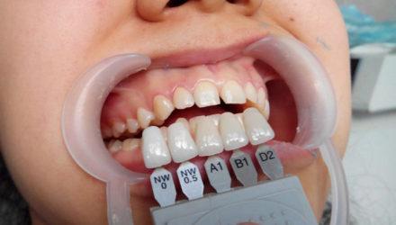 Виниры для зубов — что это и для чего нужны, этапы установки, противопоказания