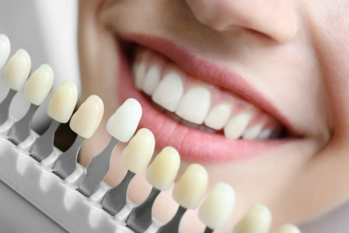 установка виниров на зубах